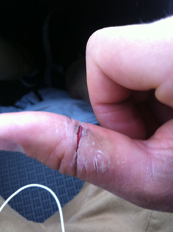 """""""I split my thumb from gripping the bars so tightly..."""""""
